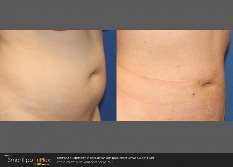 Before and after SmartLipo results