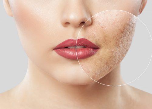 Facial & acne scars