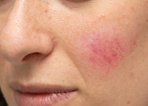 Woman's face with rosacea