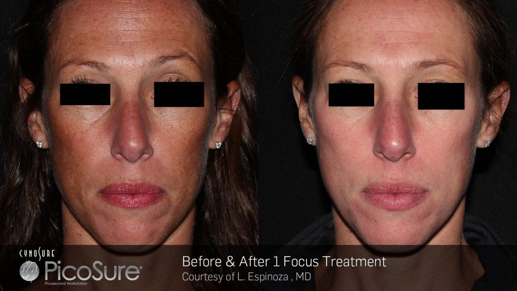 Before and after PicoSure Focus treatments