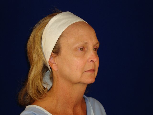 Before no-incision facelift