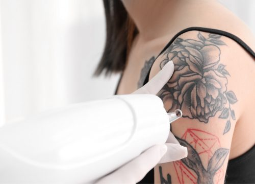 PicoSure tattoo removal in Madison