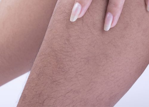 Unwanted hair on leg