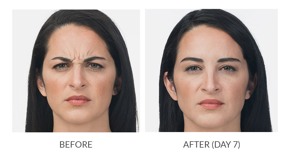 before and after results botox