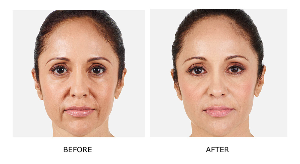 before and after results juvederm